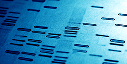 Genetic testing identified a deletion mutation in the dystrophin gene that included exons